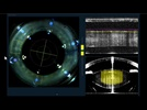 The Top 10 Ophthalmology Technology Highlights from ASCRS 2013