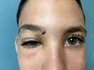 Case Study: Lingering Debris in a Seemingly Small Eyelid Wound