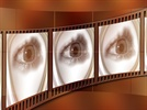 Top 5 Ophthalmology Films from ASCRS 2015