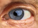 Visual Testing for Cataracts