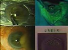 The Right Decision: Accurate and Effective Preoperative Evaluation of LASIK Candidates