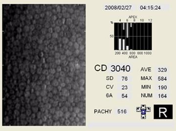 Specular Microscopy Integrate Innovative Technology Into