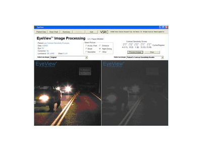 Image at left displays normal functional vision. Image at right demonstrates the low normal patient's vision during night driving conditions.