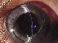Pearls for Secondary Intraocular Lens Implantation