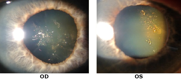 Case Report Unusual Cataract Ophthalmologyweb Com