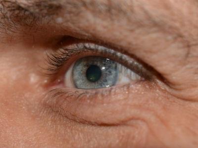 the myths regarding povidone-iodine allergy | ophthalmologyweb, Skeleton
