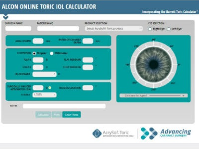 Business planning analyst alcon toric calculator