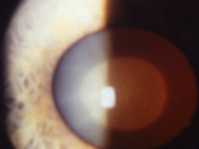 Which Is Not A Type Of Congenital Cataract Ophthalmologyweb The